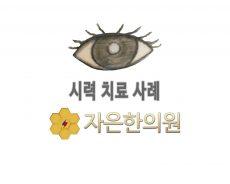 5세 남아 도O찬 짝눈 시력변화 1.2
