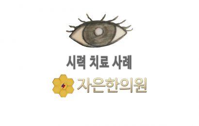 11세 여아 윤O현 근시 시력변화 0.2/0.8