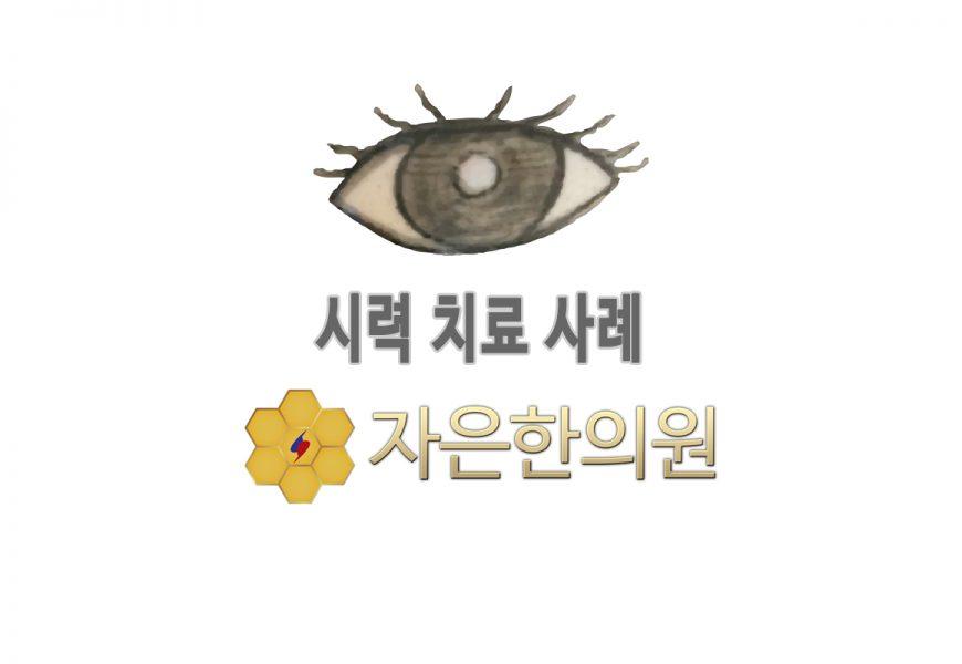 8세 남아 홍현O 근시 시력변화 0.5